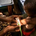Bambino malnutrito, misurazione del braccio